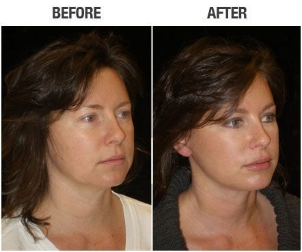 Pin by Maria Zupanc on Cosmetic surgery | Mini face lift
