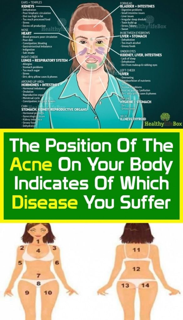 Pin by s.d fraser on Body Health in 2020 | Healthy body ...