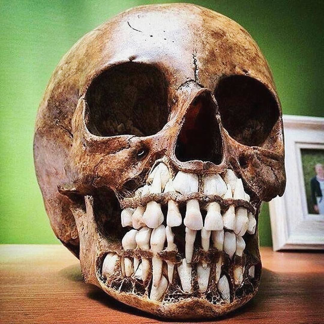 but how old was the owner..? | Teeth Matter | Pinterest | Cultura