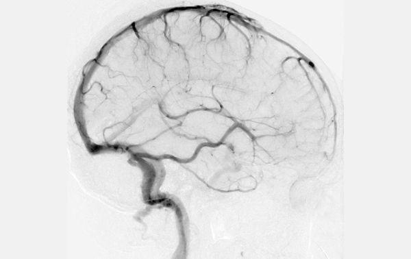 Cerebral Angiogram | Medical stuff ⚕ | Pinterest | Anatomy
