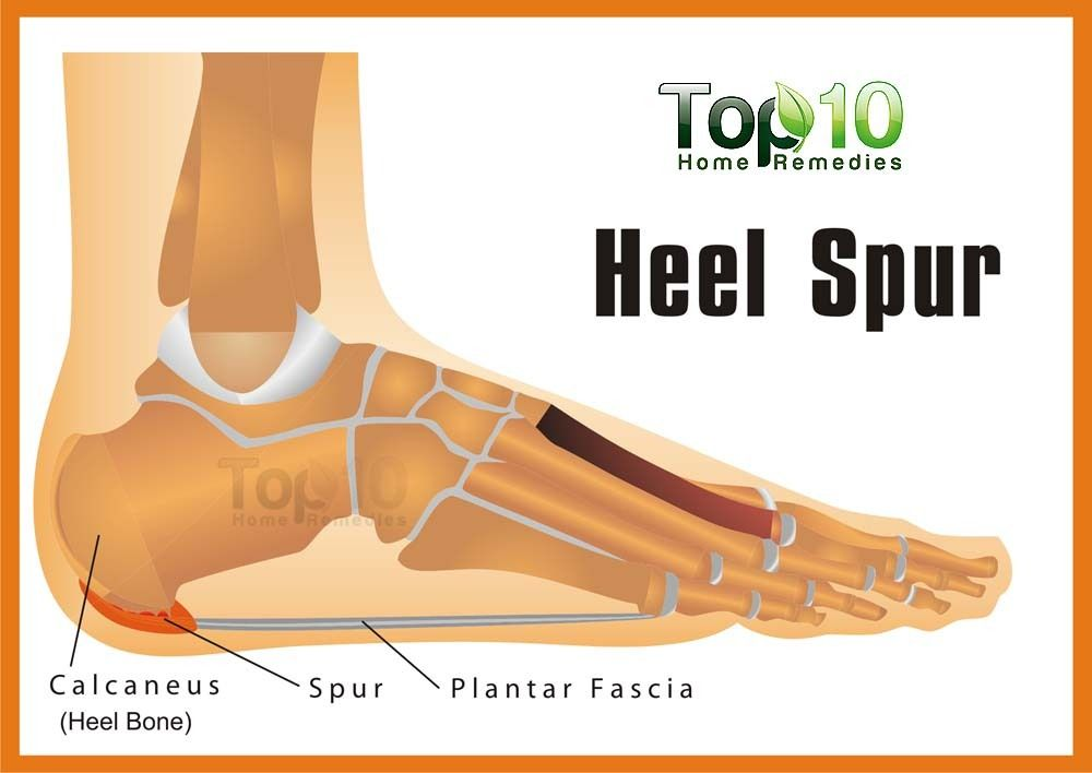 Bone spurs remedies for natural Home Remedies