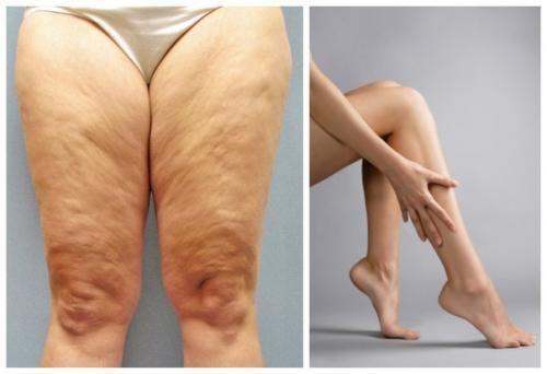 как можно убрать лишний жир на ногах