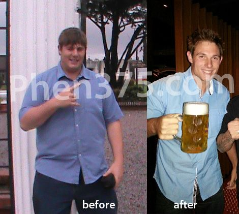 tonic weight loss surgery dubai