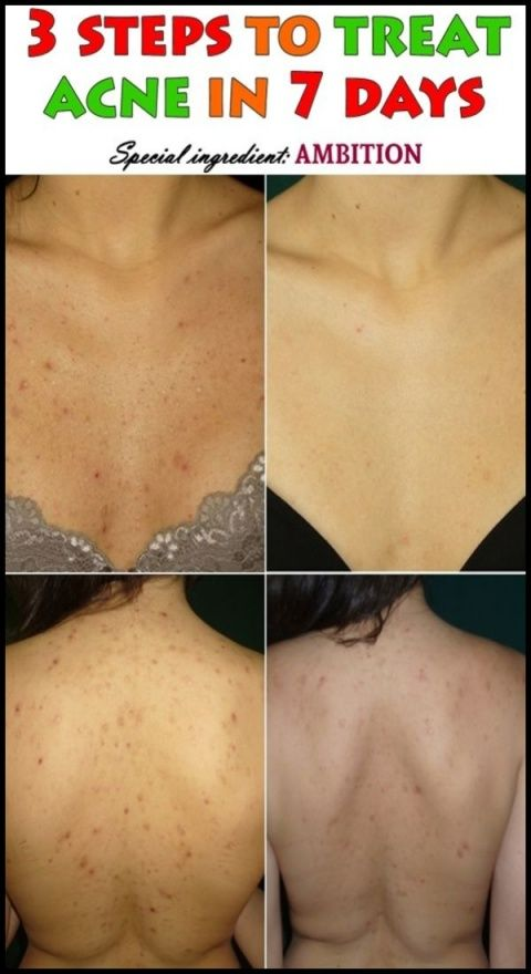 3 Best Remedies For Back Acne How To Treat Acne Acne Acne Treatment