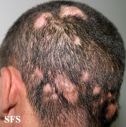Scalp ringworm - Tinea capitis