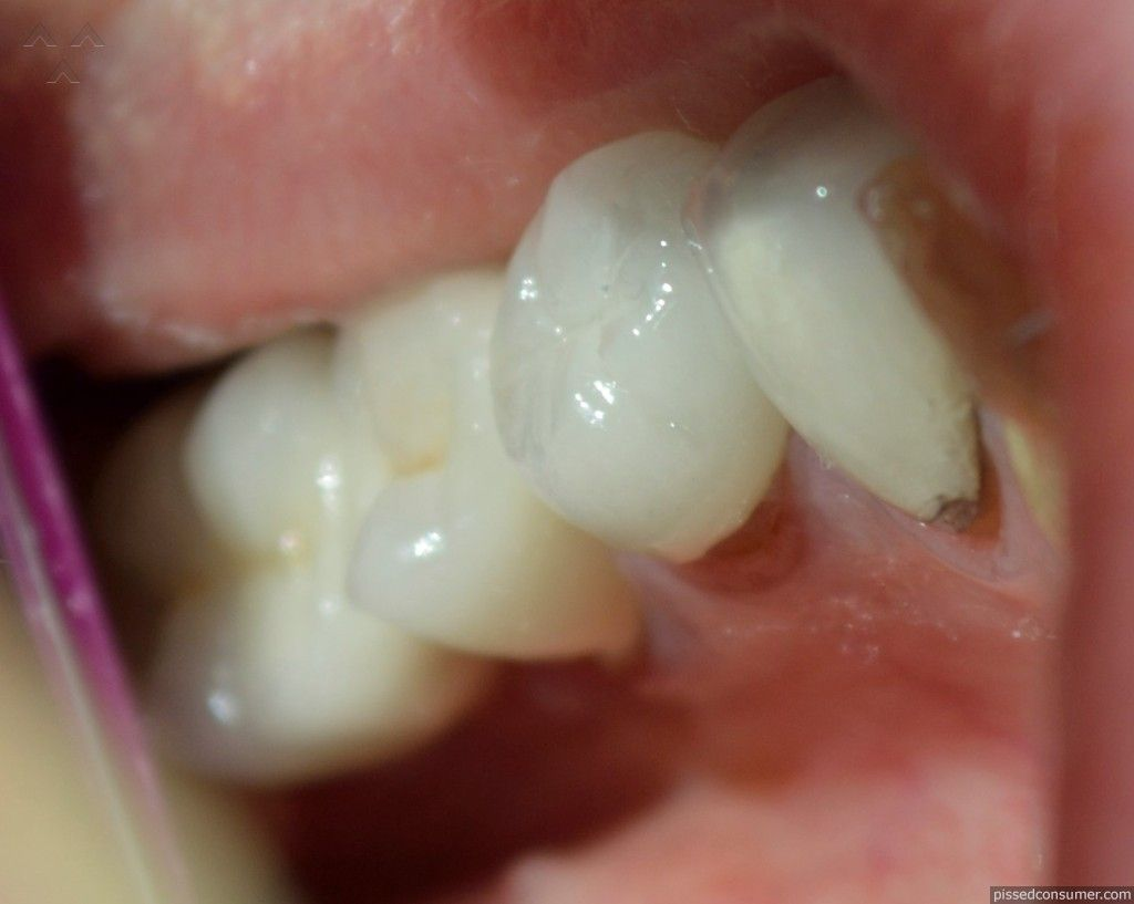 Aspen dental doctor refused to correct defective crowns