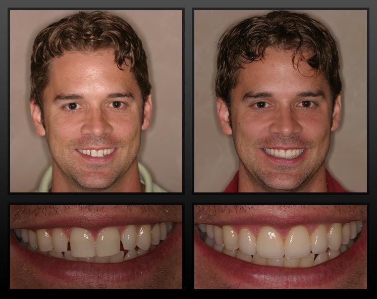 Pin on Dentistry/Orthodontics