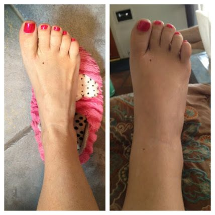 43107c3c29aac8dc2220cea761780051 - How To Get Rid Of Swollen Toes In Winter