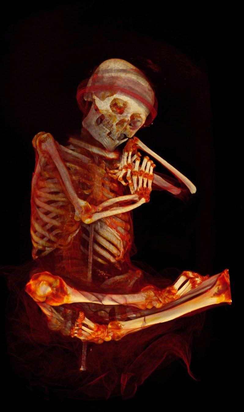 Peruvian mummy seen with CT scanner   demasié   Pinterest   Parca ...