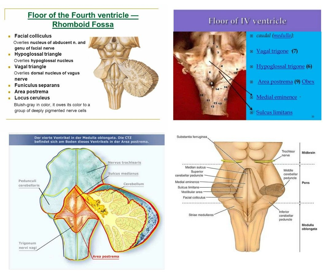 Floor of Fourth Ventricle 【 Note: Both Vagal & Hypoglossal triangle ...