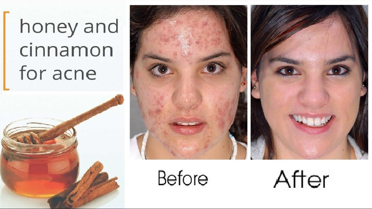 home remedies for acne and pimples #SkinBleachingHomeRemedies #homeremediesforringworm