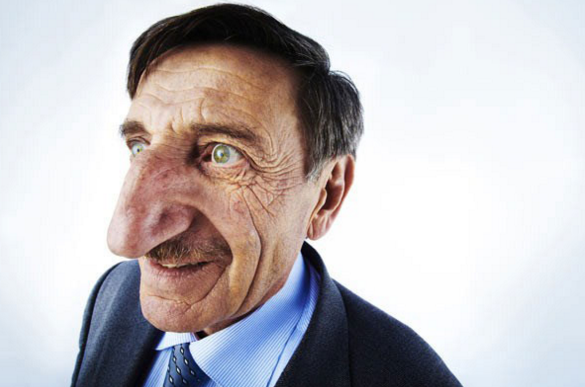Real nose! | Big noses, Guinness world records, Crazy people