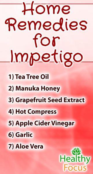 7 Proven Home Remedies For Impetigo Impetigo Remedies Home
