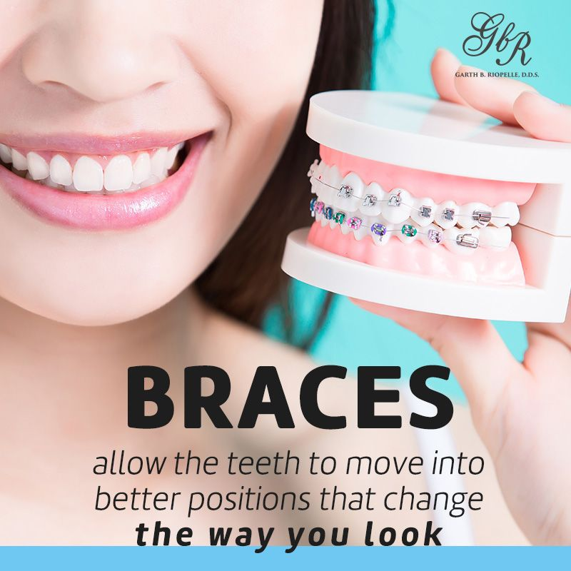 Pin by Dr. Garth on Dr. Riopelle DDS Dental braces