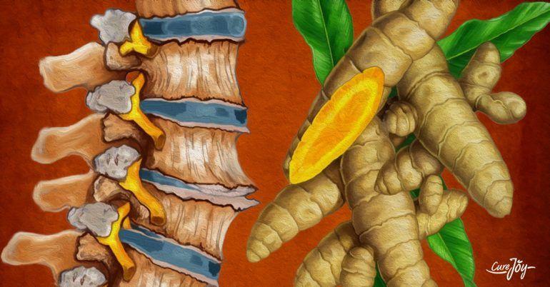 hirudoterapie pentru revizuirile varicose