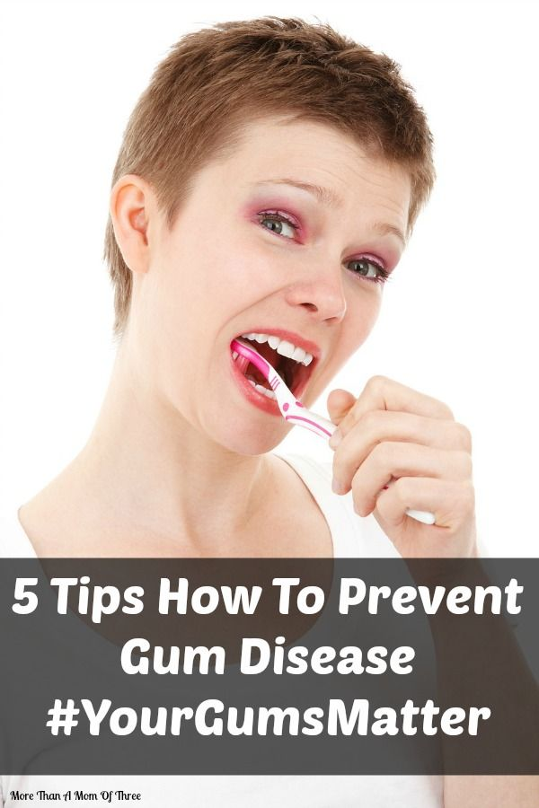 Raise awareness about gum disease and how it can be prevented very easily with just a few steps. #ad