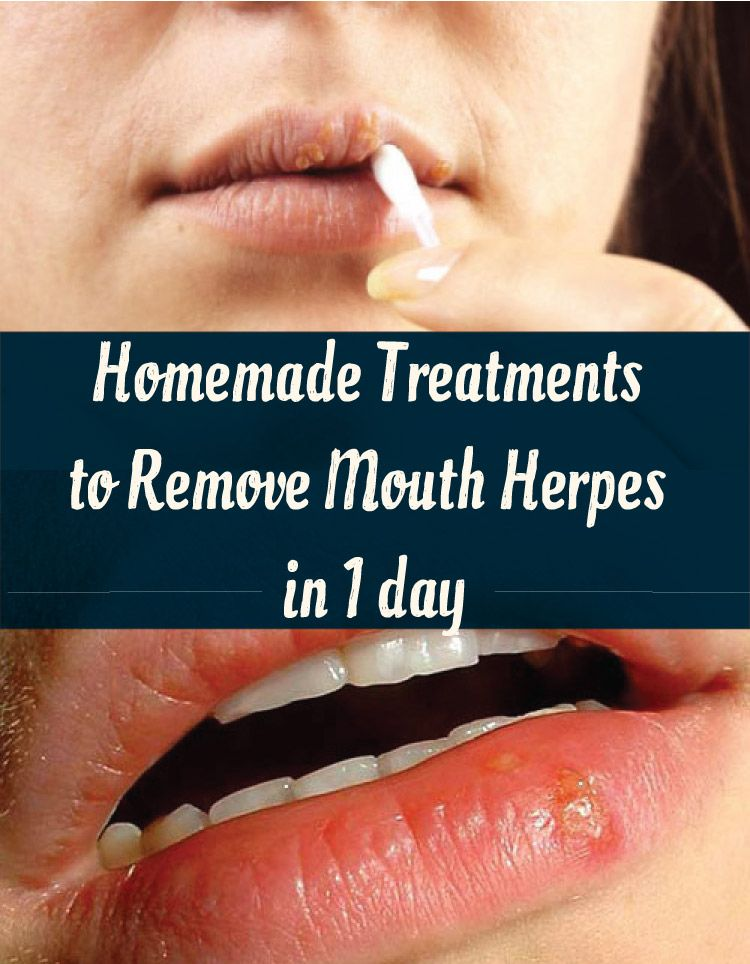 Homemade Treatments to Remove Mouth Herpes in 1 day | Herpes