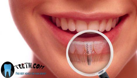 Oteeth com will tell you about 24 hour dentist affordable