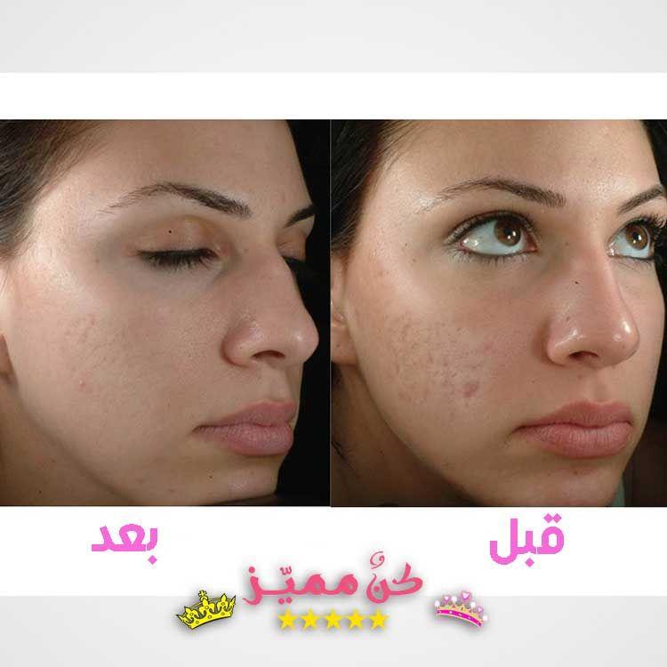 الليزر الكربوني للوجه قبل و بعد مميزاته و اضراره و دواعي استخدامه Carbon Laser For The Face Before And After Its Advant Laser Therapy Laser Nose