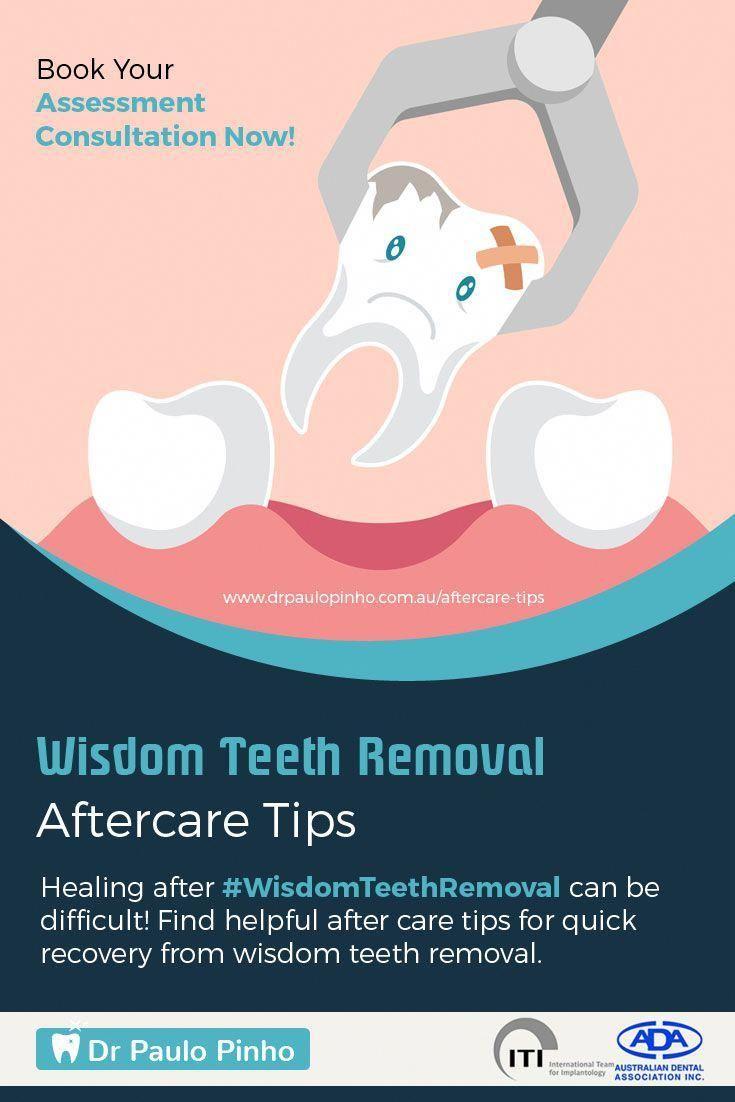 Brawny benefits of dental implants oralhealthmonth