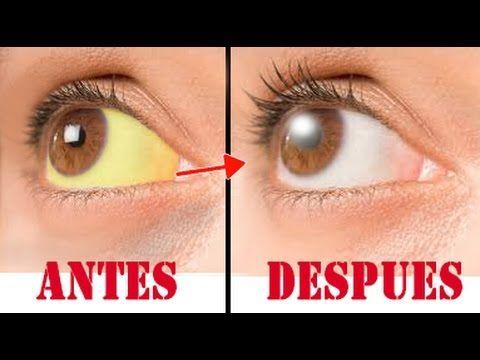 Porque se pone los ojos amarillos