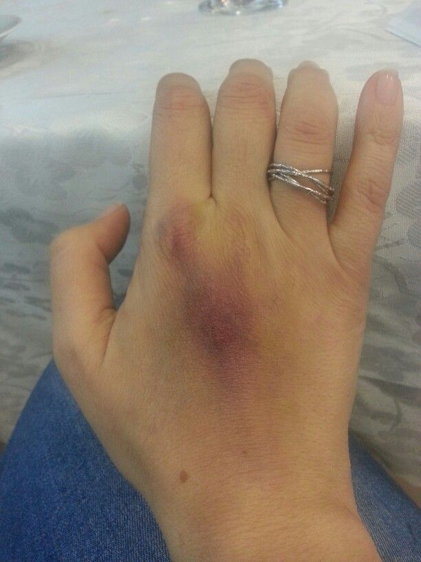 Bruise make up on my hand