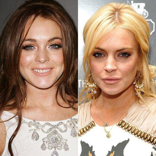 Famosos O Antes E Depois Do Botox Dos Famosos Botox