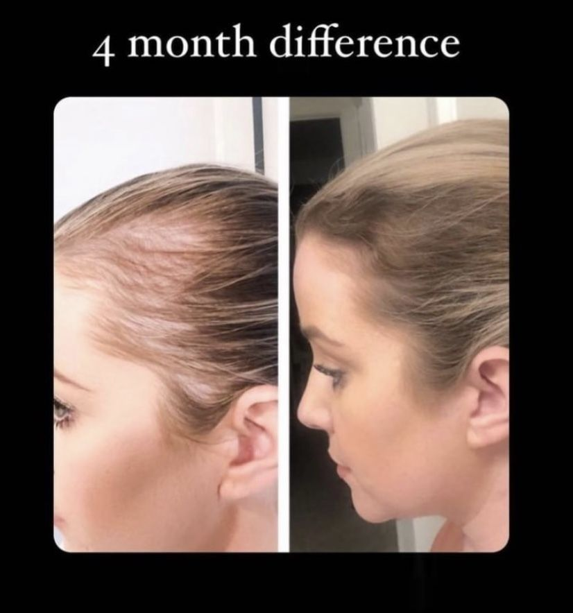 48++ Liquid collagen for hair trends