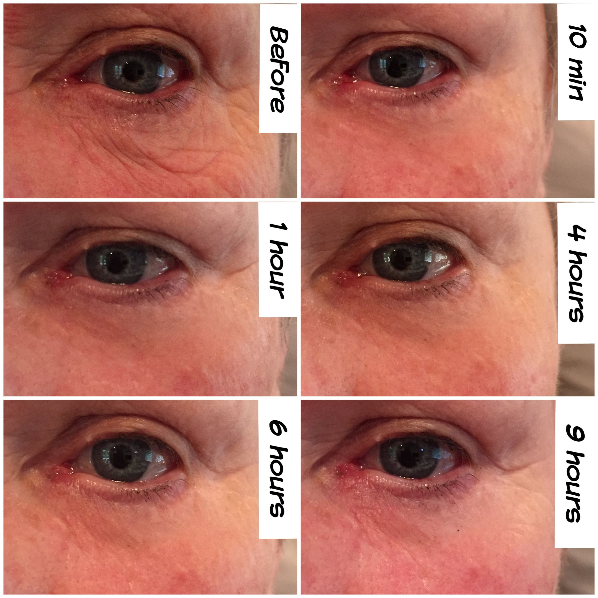under eye wrinkle cream that really works
