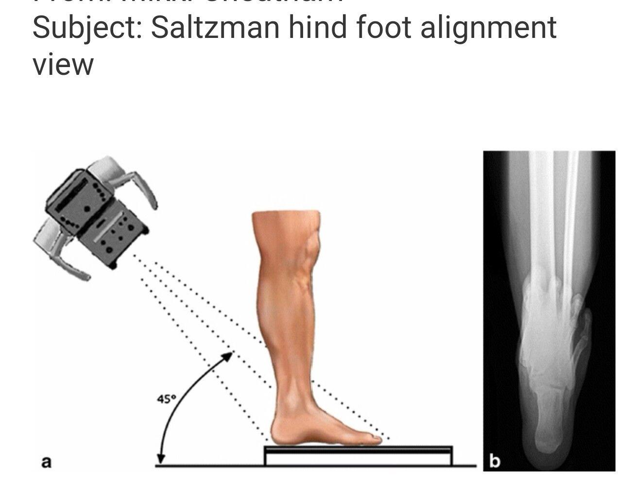 Scotty Dog Lumbar Spine Anatomy