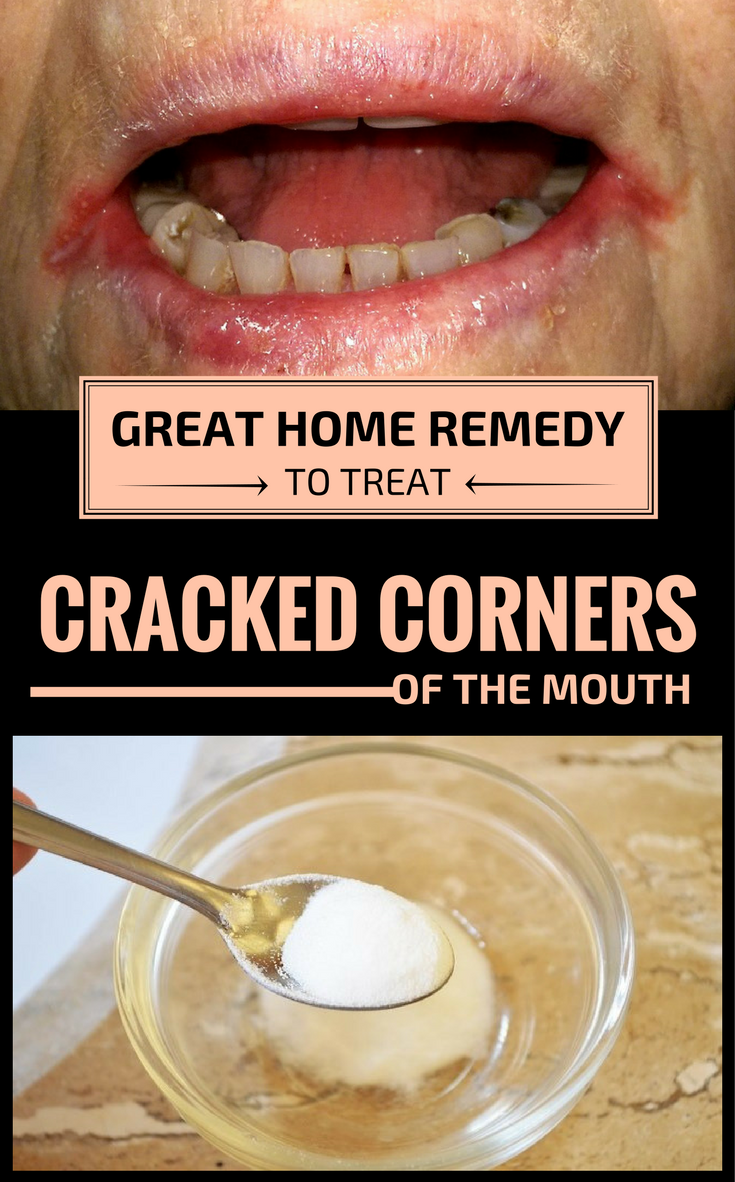 5b289d3d1f4 Great Home Remedy To Treat Cracked Corners Of The Mouth - JustRemedies.net