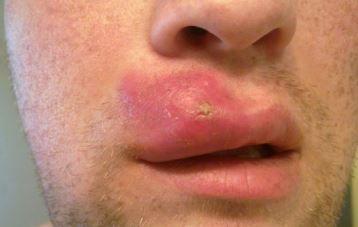 Bruised Lip Lip Pimple Poping Pimples Painful Pimple