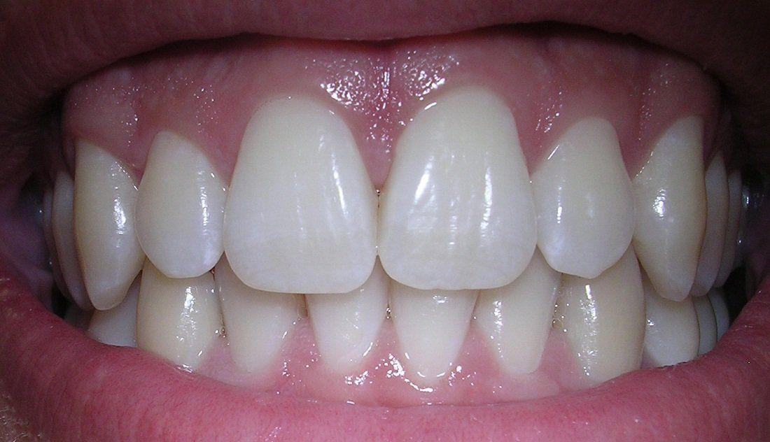 How To Make Your Receding Gum Line Grow Back Health Receding