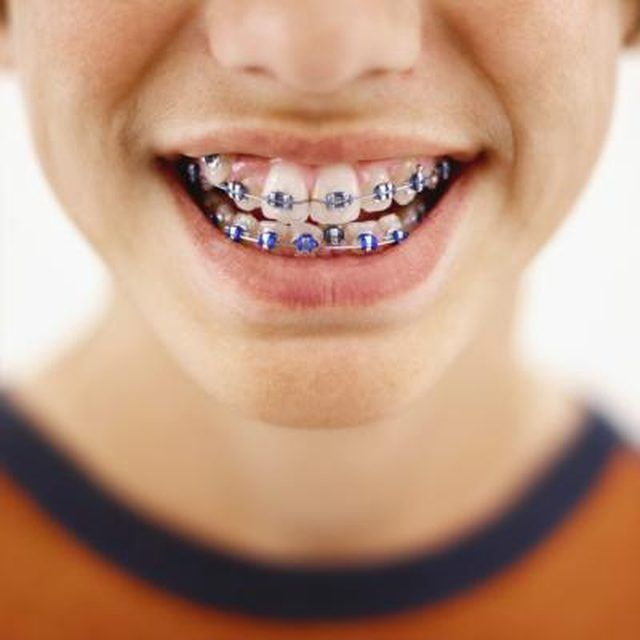 Image result for tighten Up That Smile With Dental Braces