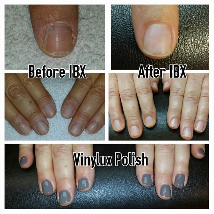 IBX helps polish stay on LONGER! | IBX Before-And-After Photos ...