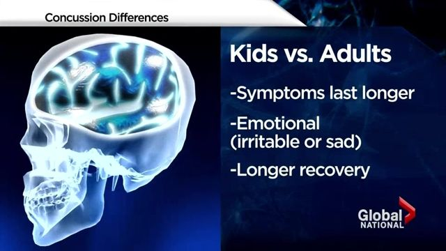 New website launched to help recognize concussion signs in kids | Globalnews.ca