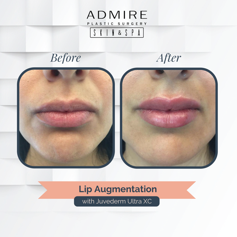#TransformationTuesday: This is a vermillion boarder filling injected for a cute Cupid's bow, and then added more volume to give a pillowed #pout. Try #Juvederm Ultra XC for $275, 1/2 syringe.