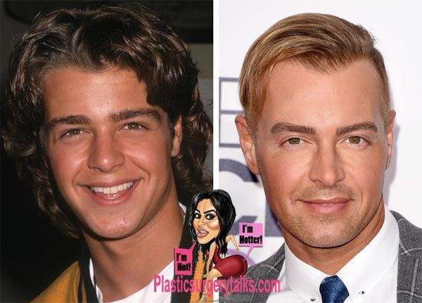 Pin By Kincet On Celebrity Plastic Surgery Joey Lawrence