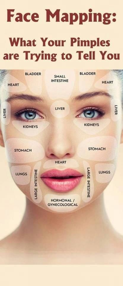 an interesting diagram that shows what can cause acne on differentan interesting diagram that shows what can cause acne on different areas of the face