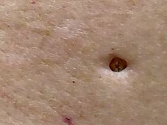 Dr  Pimple Popper revisits her most famous dilated pore and