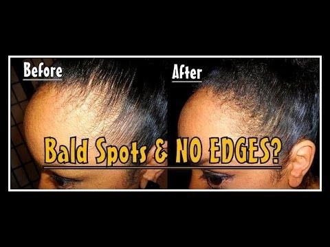 Natural Hairstyles For Thin Edges Entrancing Thinning Or No Edges Use This Product To Fill Them In Video