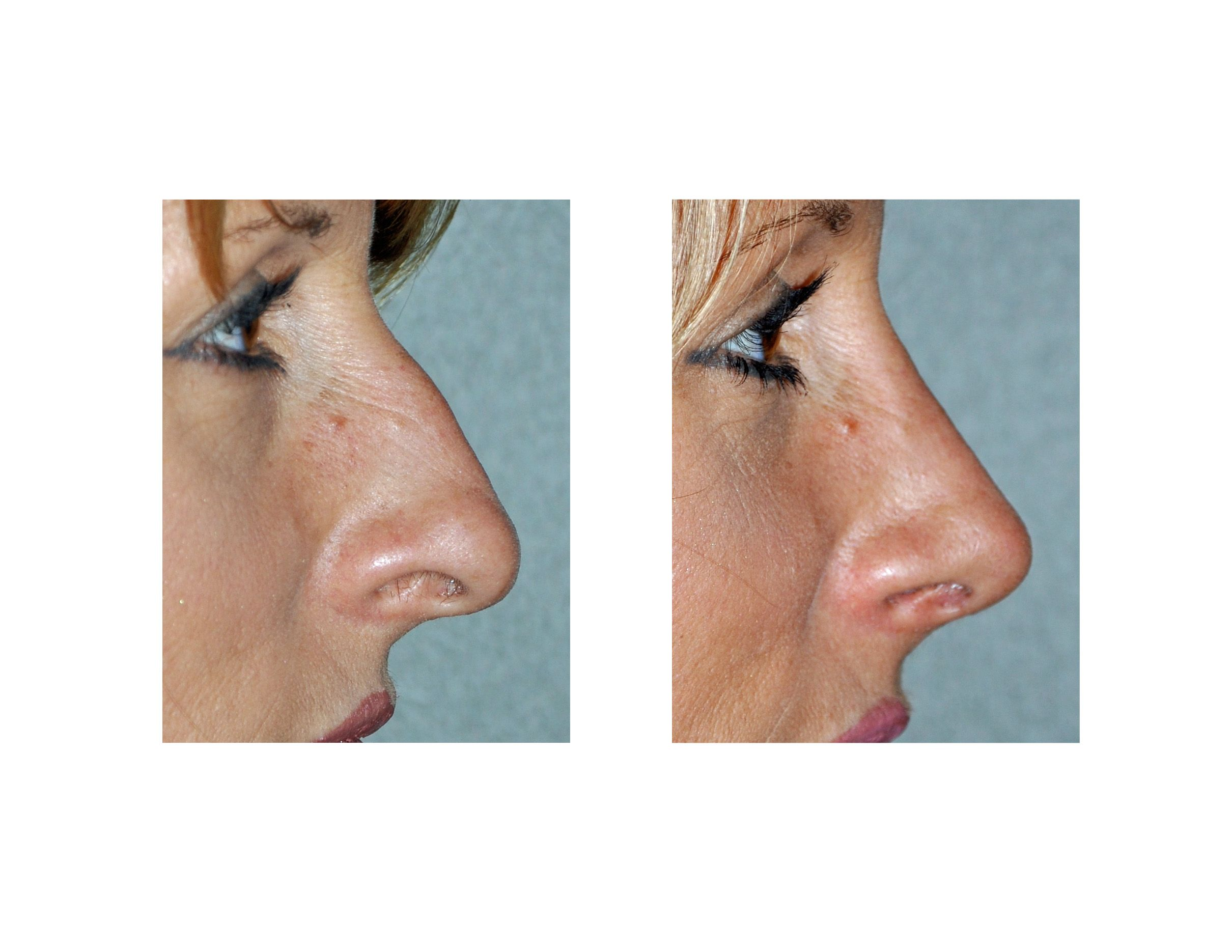 best images about noses older beauty different rhinoplasty archives explore plastic surgery dr barry eppley