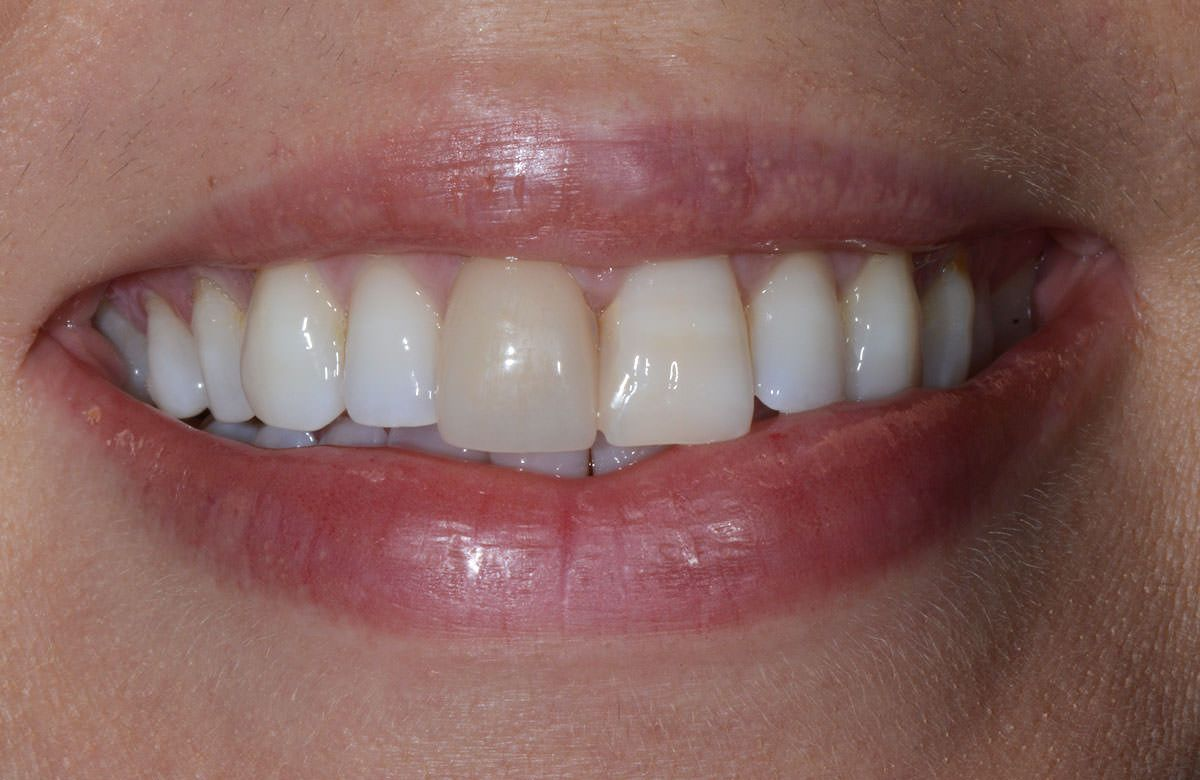 Dental crown and tooth bridge in dubai with images