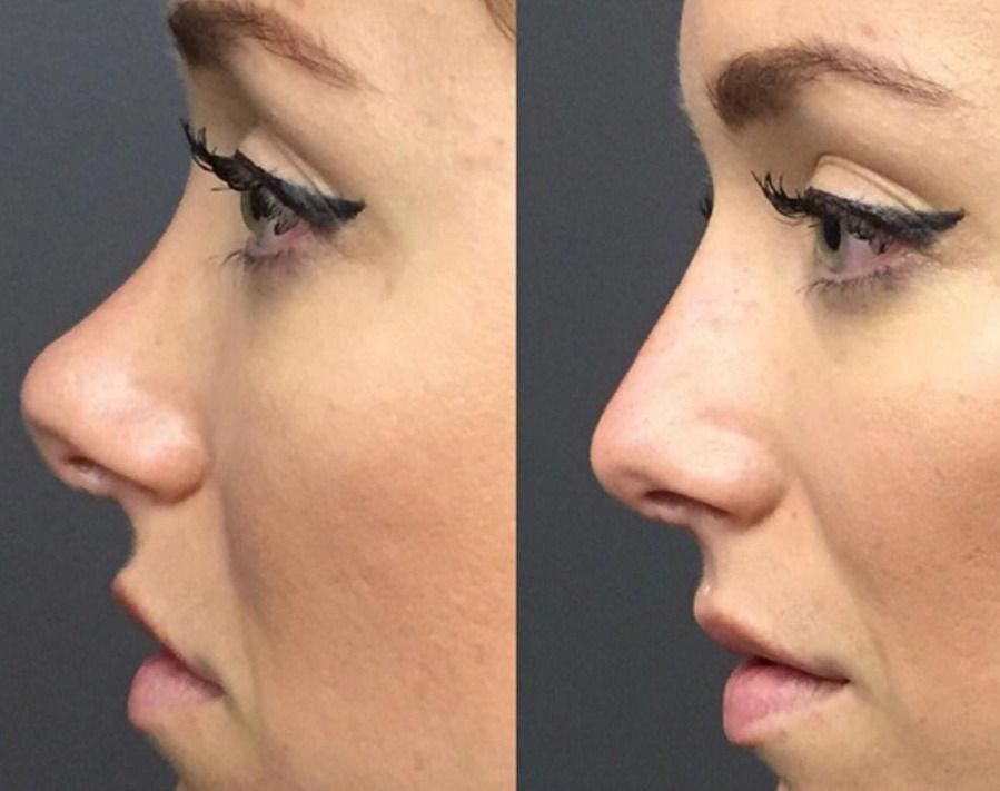 Why nose surgery is the most complicated cosmetic