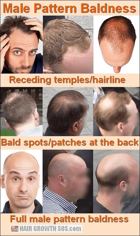 Why the Pattern in Male Pattern Baldness Develops in 2020