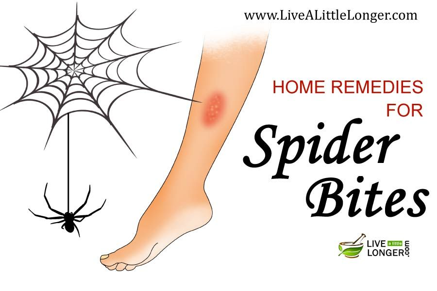 5 best home remedies for spider bites with images home