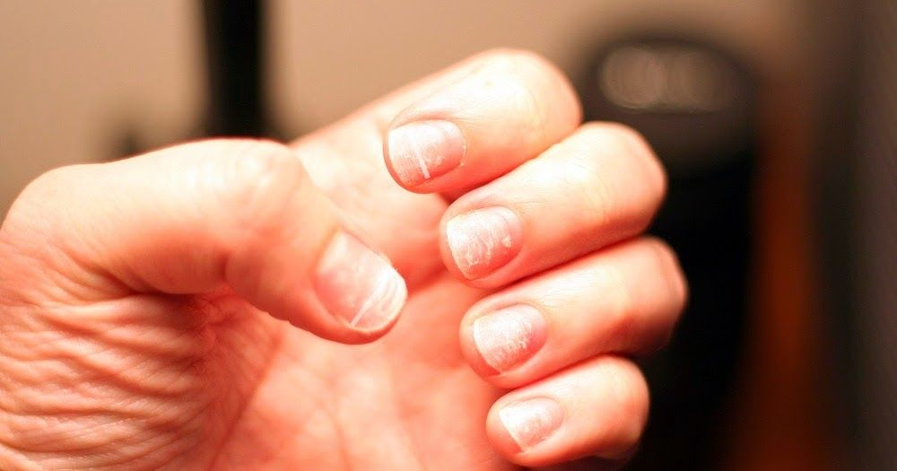 Ridges in Your Nails Point to Larger Health Problems | It\'s the look ...