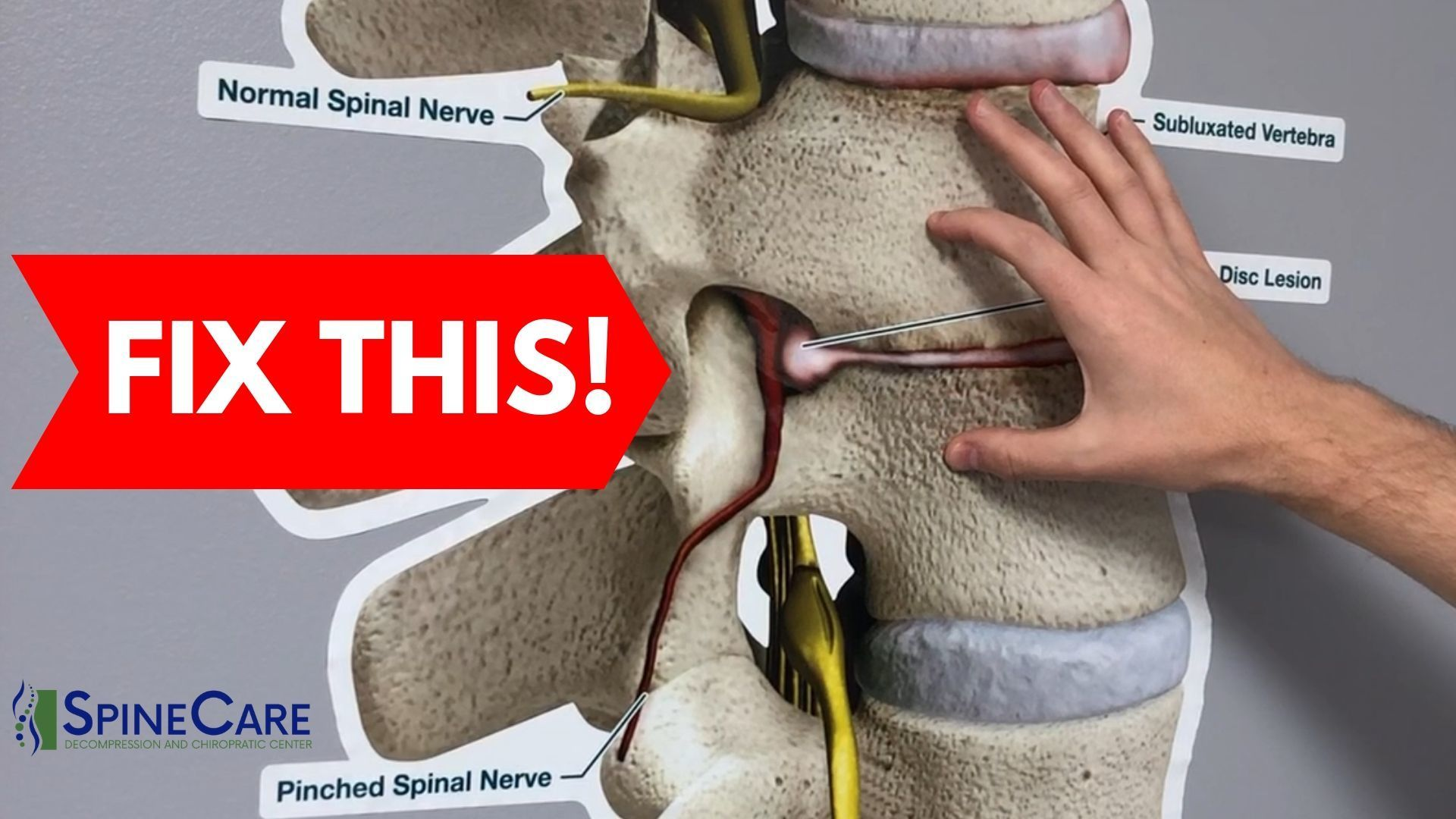 How to Fix a Bulging Disc in Your Lower Back Bulging