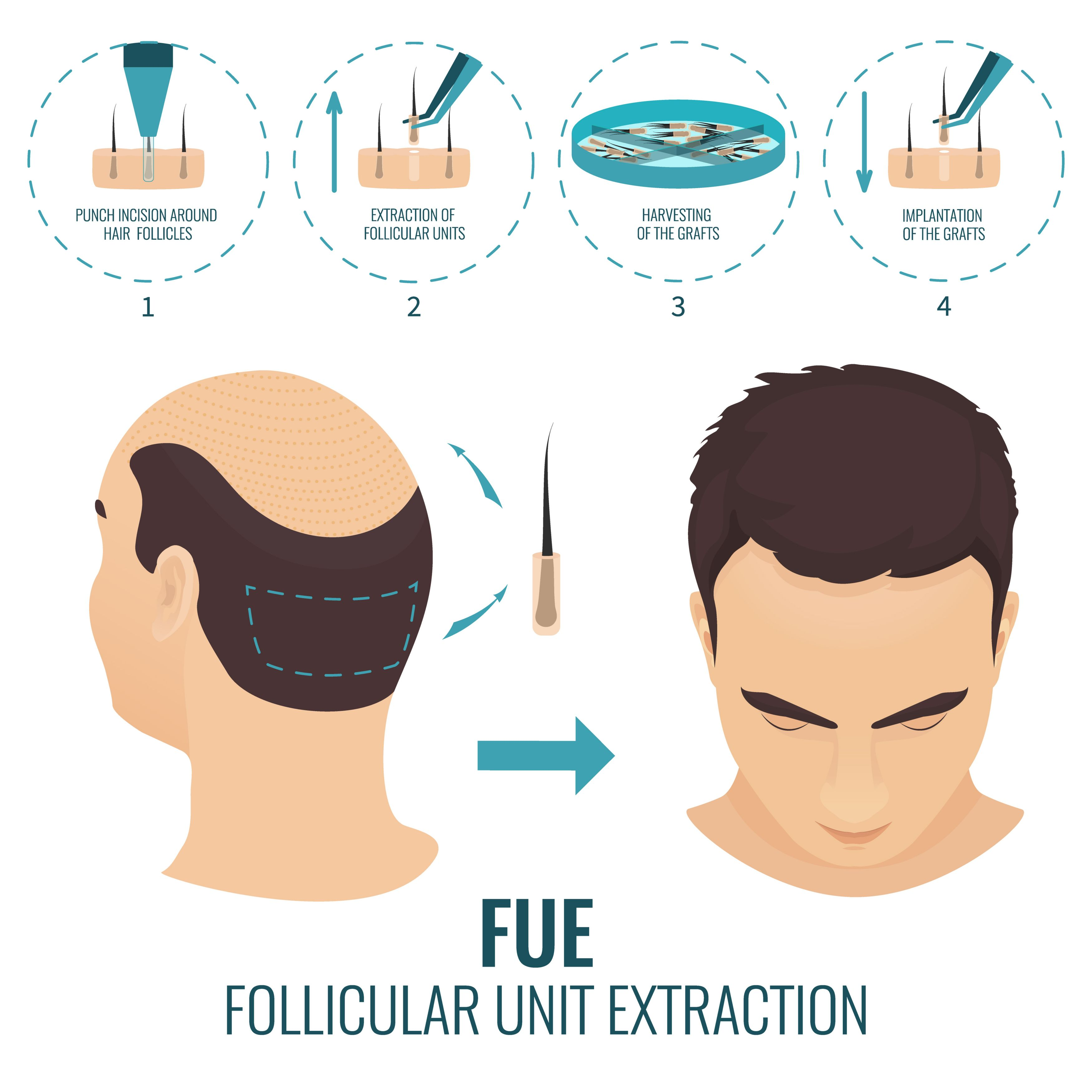 Hair Transplant By World S Most Advance Fue Technique In Noida