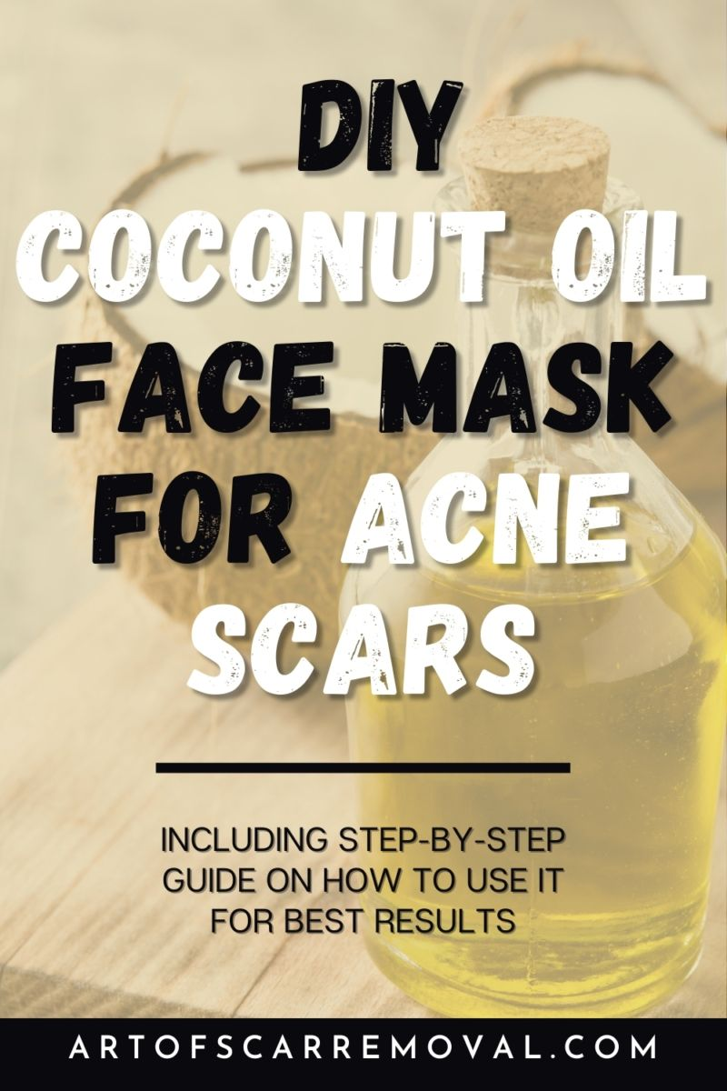 Photo of DIY Coconut Oil Face Mask For Acne Scars (Easy Tips Plus How It Works) | Art of Scar Removal